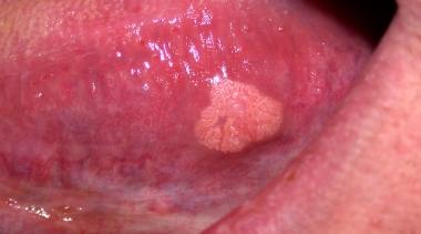 papiloma bucal benigno